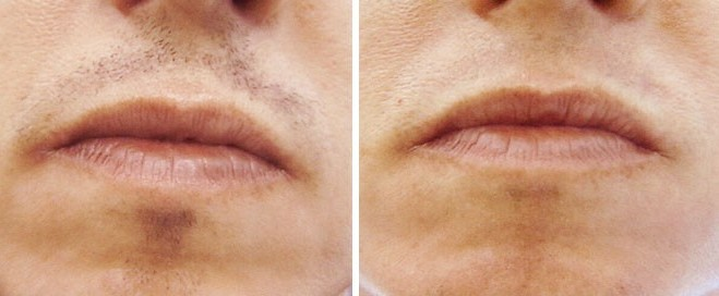 laser-hair-removal-upper-lip-before-after